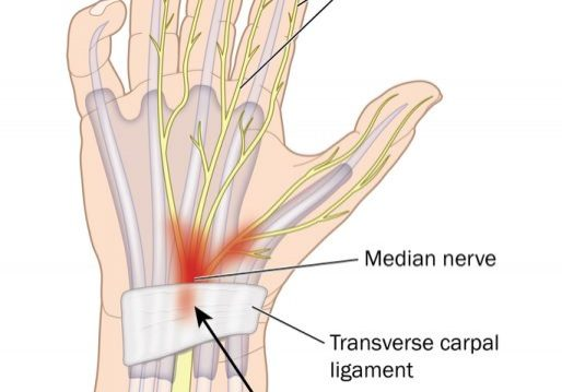 carpal+tunnel